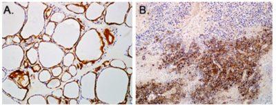 Anti-hNIS antibody SJ1 immunohistochemical staining